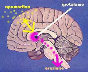 DISFUNZIONE ERETTILE: la terapia con apomorfina