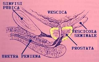 CRIOPASS TERAPIA – una nuova cura per le prostatiti croniche e l'induratio penis plastica